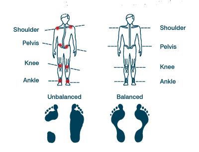 posture_align